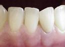 ToothFracture2
