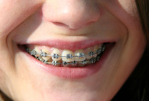 braces-doon-south-dental-kitchener