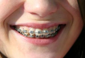 braces-doon-south-dental-kitchener