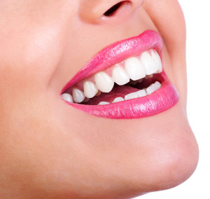teeth-whitening-doon-south-dental-kitchener
