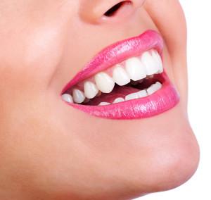 teeth-whitening-doon-south-dental-kitchener